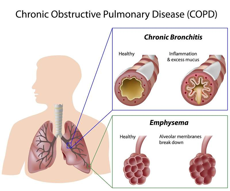 What Is COPD, How Can It Be Treated, and What Are The Risks?